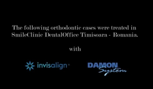 Damon and Invisalign orthodontic treatments
