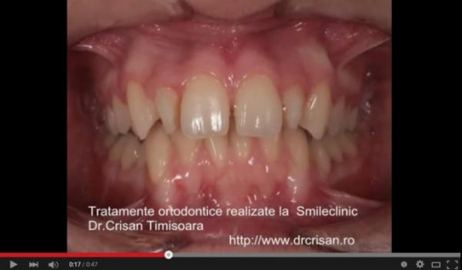 Orthodontic treatments before and after